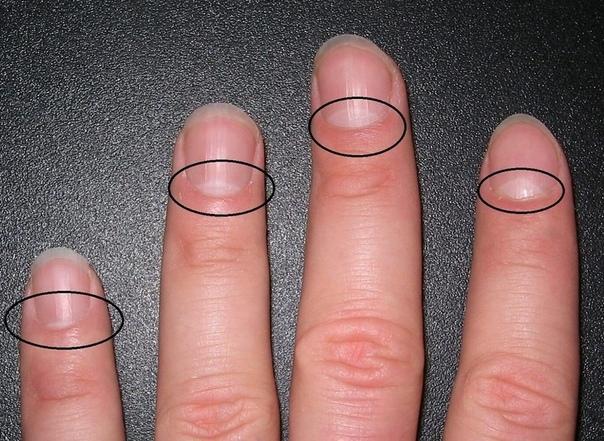 ВЗГЛЯНИ НА СВОИ НОГТИ Вот почему могут исчезнуть белые лунки у основания ногтя: не пропусти тревожный симптом! Взгляни на свои ногти: видишь светлые полумесяцы у их основания Это и есть лунки