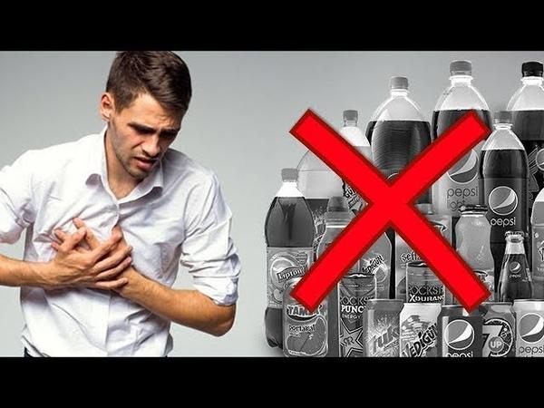АЛЛЕРГИЯ у детей и взрослых сыпь дерматит 5 напитков исключить как вылечить аллергию