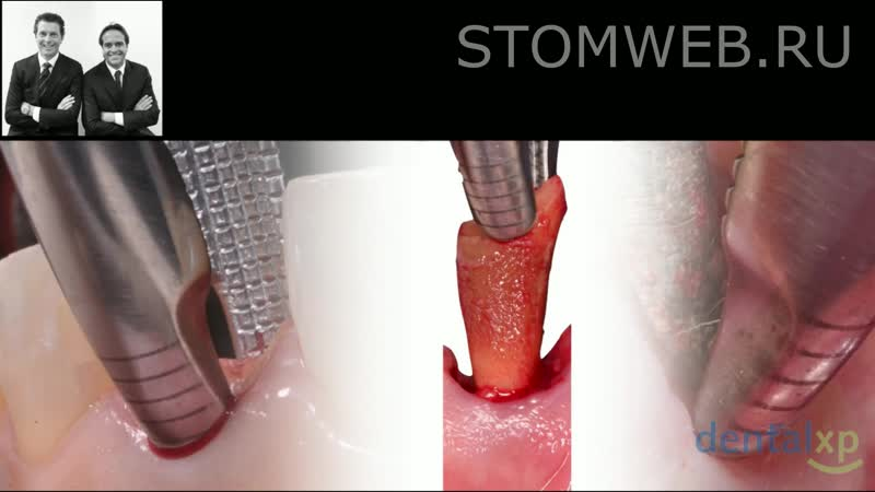 Surgical Veneer Grafting Protocol Step by Step Utilization in the Esthetic Zone
