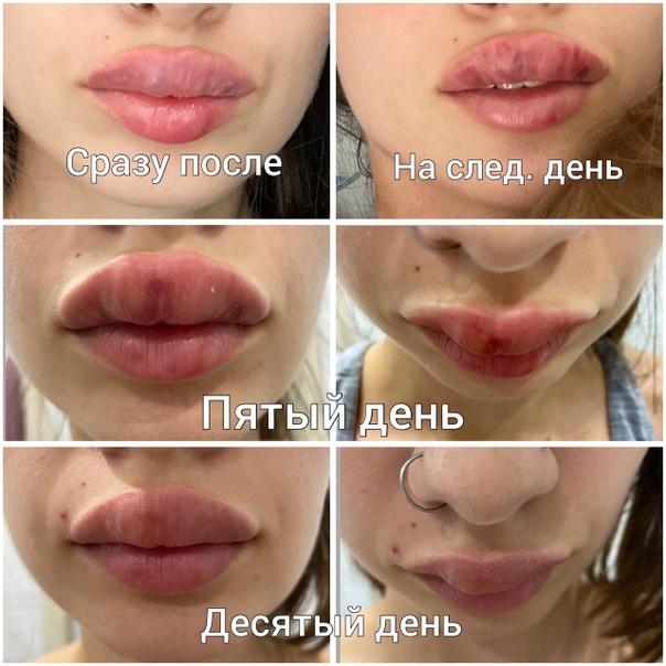 В Самарской области девушку вторую неделю пугают собствен...